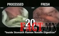 Inside-Stomach-Ramen-Noodle-Digestion